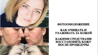 видео Фотоомоложение