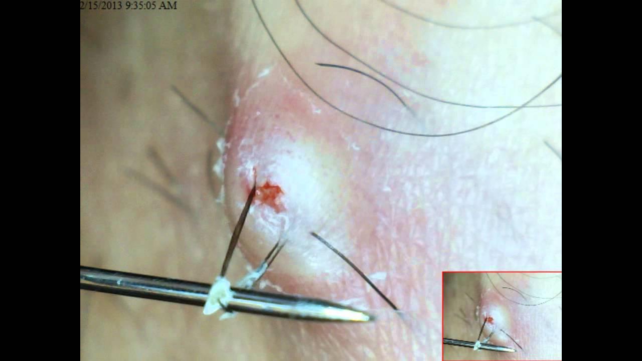 pilonidal cyst pictures #9
