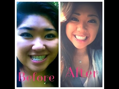 My Jaw Surgery Story: Underbite + Pictures!!