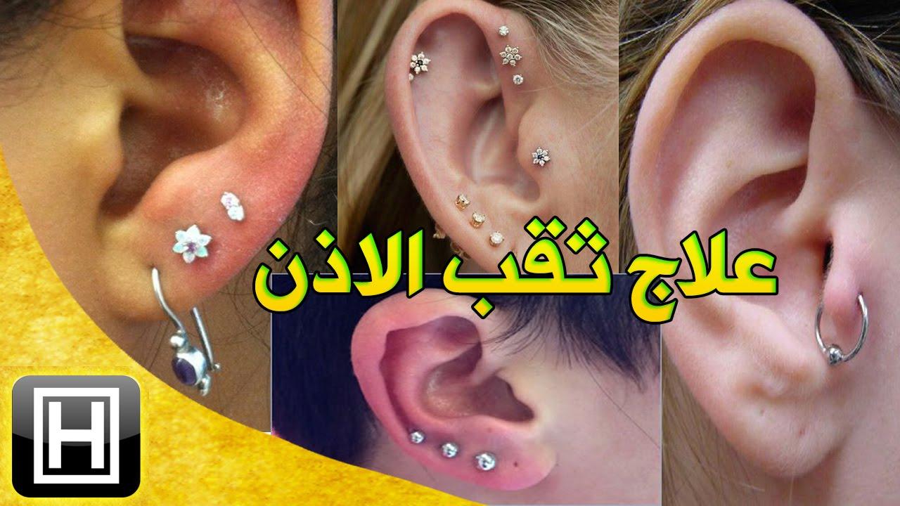أسهل علاج للتهاب خرم الاذن أو مكان ثقب حلق الاذن وشفاء تورم الغضروف طبيعيا Youtube