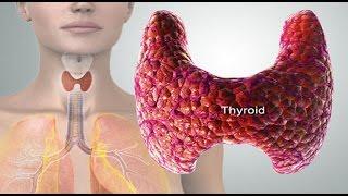 Thyroid- थाईराइड की बीमारी को कैसे पहचाने? लक्षण, उपचार, नुस्खे और  बचाव के उपाय