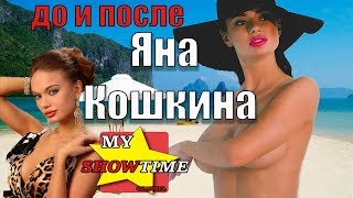 ЯНА КОШКИНА ГОЛАЯ ПРАВДА YANA KOSHKINA NAKED TRUTH№2 До и После ПЛАСТИКИ  my showtime #8