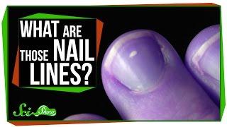 「爪に表れる白い線は病気のサイン」というのは本当か?