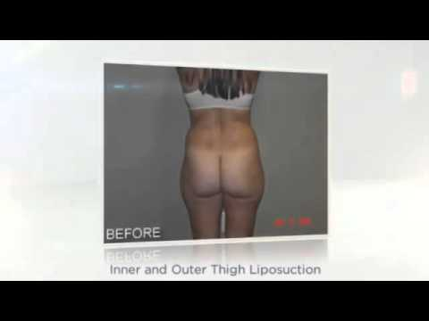 Liposuction in Fort Myers FL - Farahmand Plastic Surgery