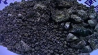 7750 gallstones found in a patient's body in C China's Hubei