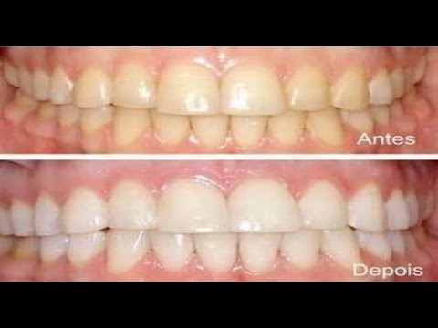 Clareamento Dental Caseiro Receita Natural E Barata Youtube
