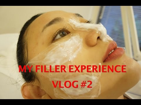 MY FILLER EXPERIENCE with JAKARTA AESTHETIC CLINIC - dr. OLIVIA ONG | VLOG #2