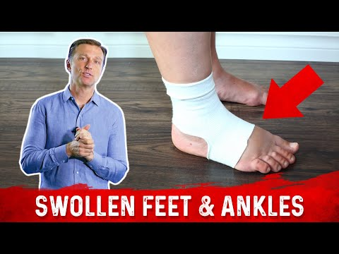 Foods for Fluid Retention in the Feet and Ankles