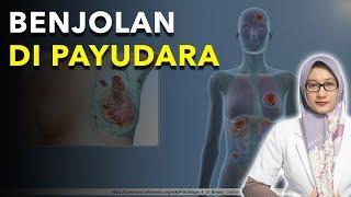 6 Jenis Benjolan Kanker Payudara dan Non Kanker | dr. Ema Surya P.