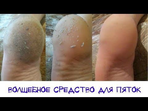 Как почистить ноги от огрубевшей кожи в домашних условиях