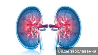 Хронический гломерулонефрит. Как лечить хронический гломерулонефрит.