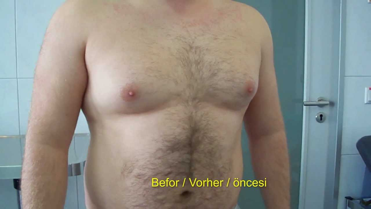 Männerbrust Loswerden Gynecomastia Removal Männer Brust Entfernen In Berlin Lacomed Clinic
