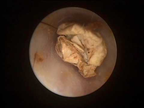 Hearing Loss Due To Forgotten Foreign Body