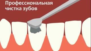 Фторирование зубов(, 2017-08-07T04:07:08.000Z)