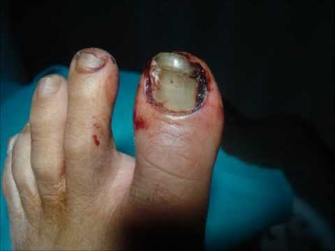 how to clean injured toenail