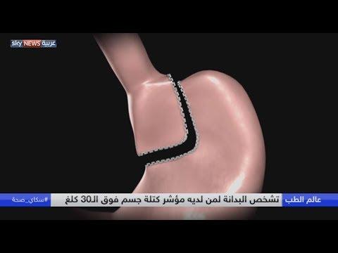 البدانة مرتبطة بالسكري والقلب والسرطان  - 05:21-2017 / 6 / 25
