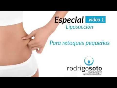Especial Liposucción para retoques pequeños - Dr. Rodrigo Soto