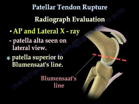 Patellar Tendon Rupture - Everything You Need To Know - Dr. Nabil Ebraheim