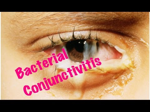 how to get rid of conjunctivitis