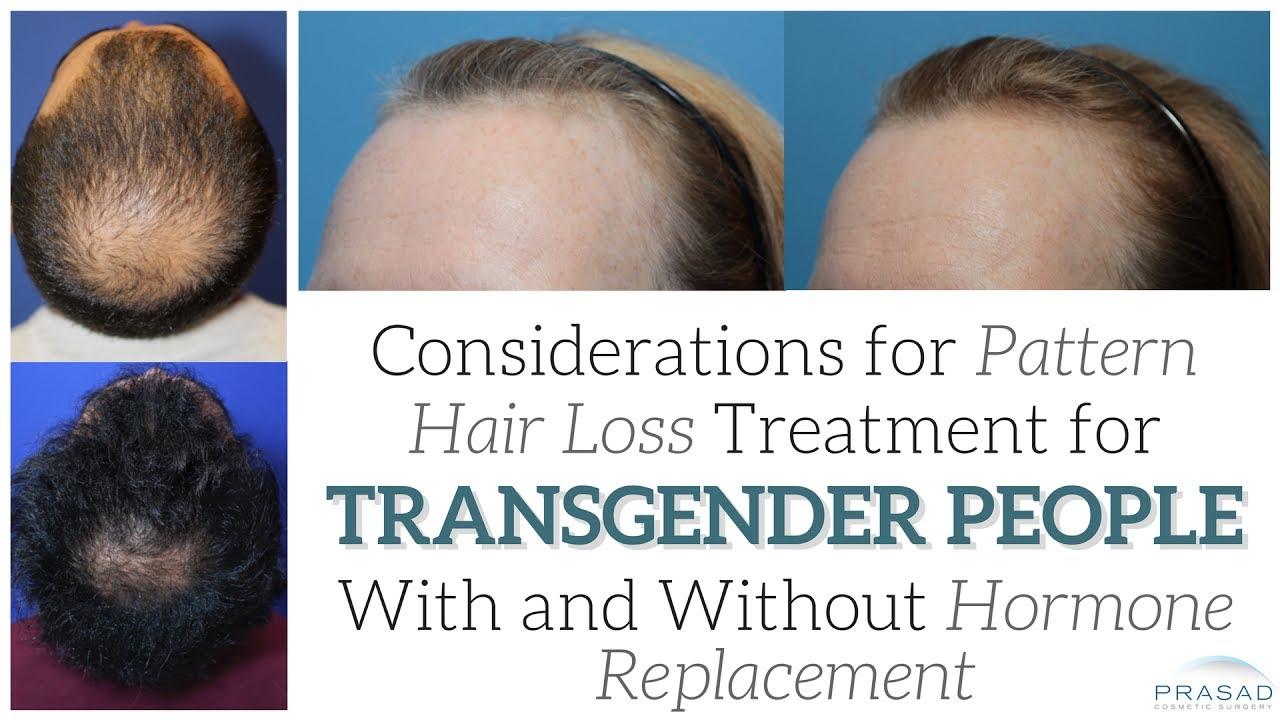 Pattern Hair Loss Interesting Design Inspiration