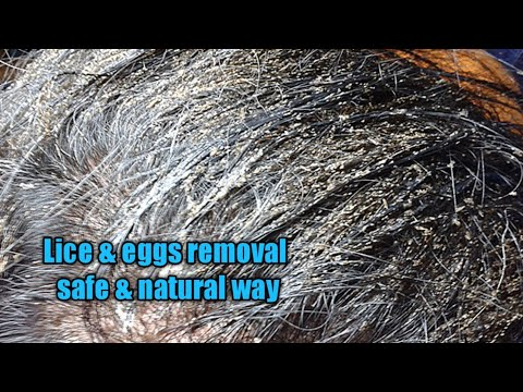 Head Lice & Eggs Removal Safe And Natural Way/head Lice & Nits Treatment Safe And Natural Way