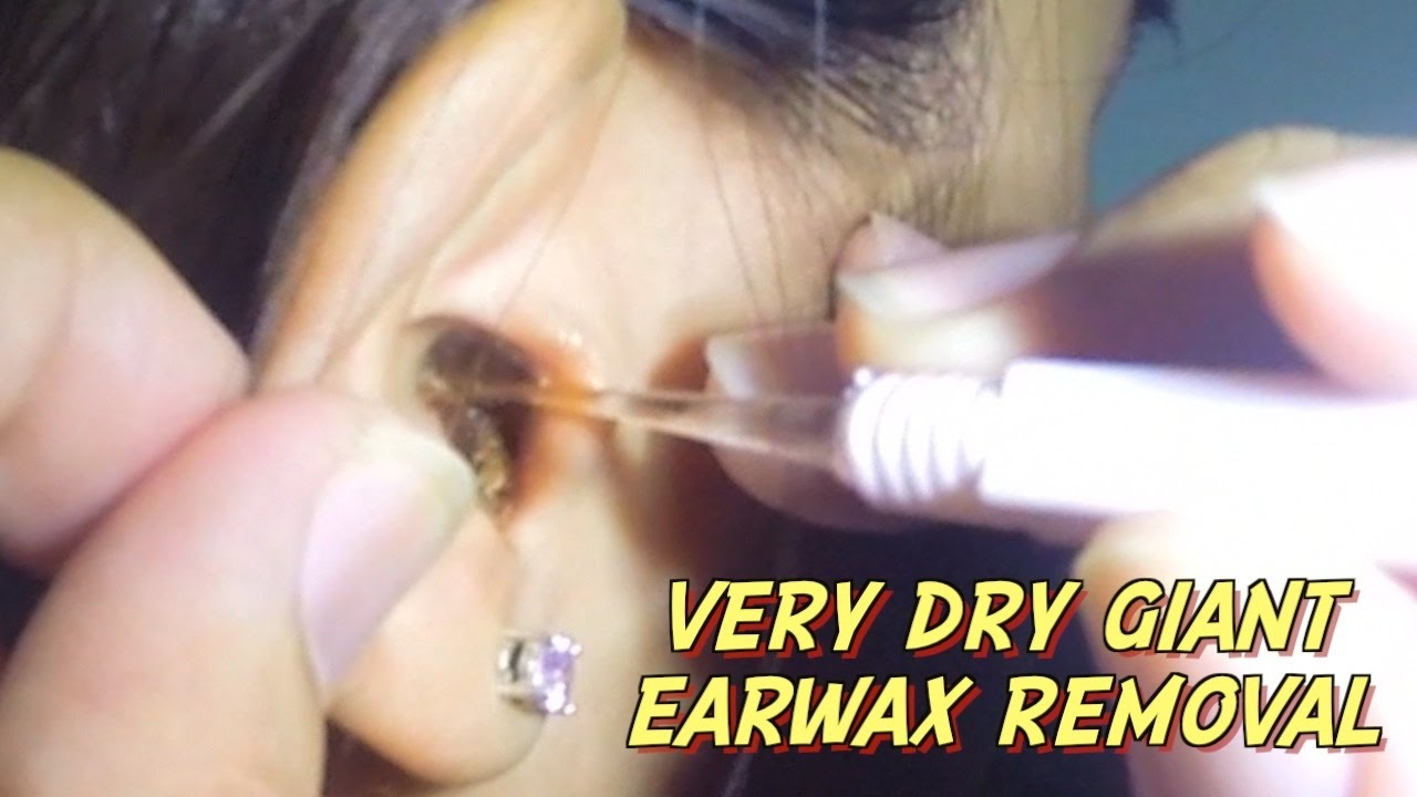 Very Dry Giant Earwax Removal - YouTube
