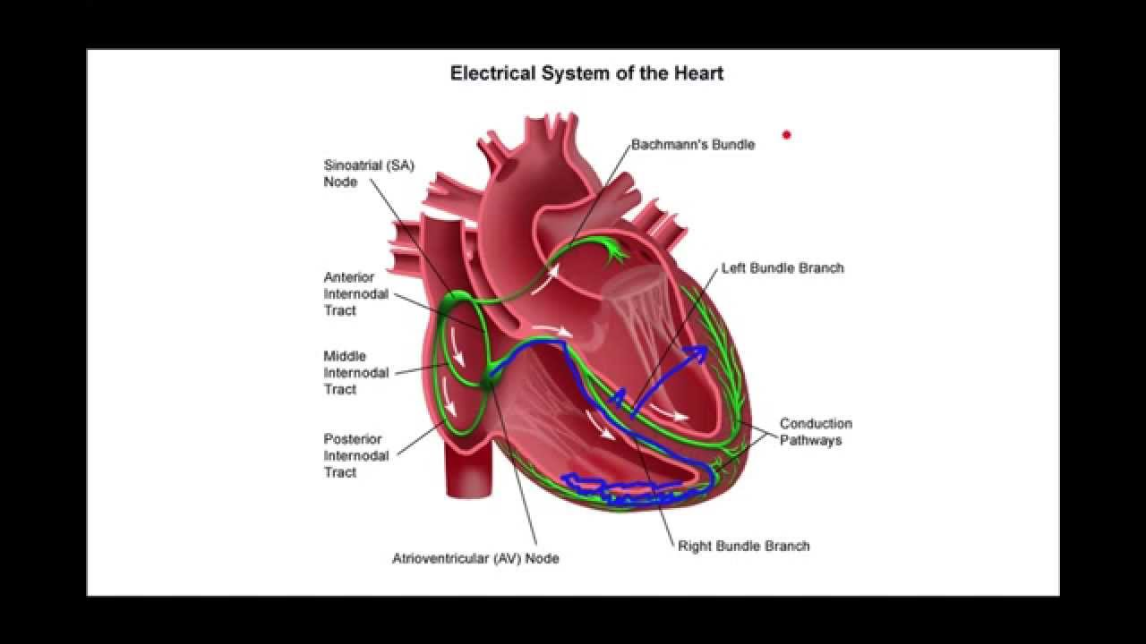 How to recognize left bundle branch block youtube how to recognize left bundle branch block ccuart Image collections