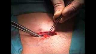 ARGUS Surgery