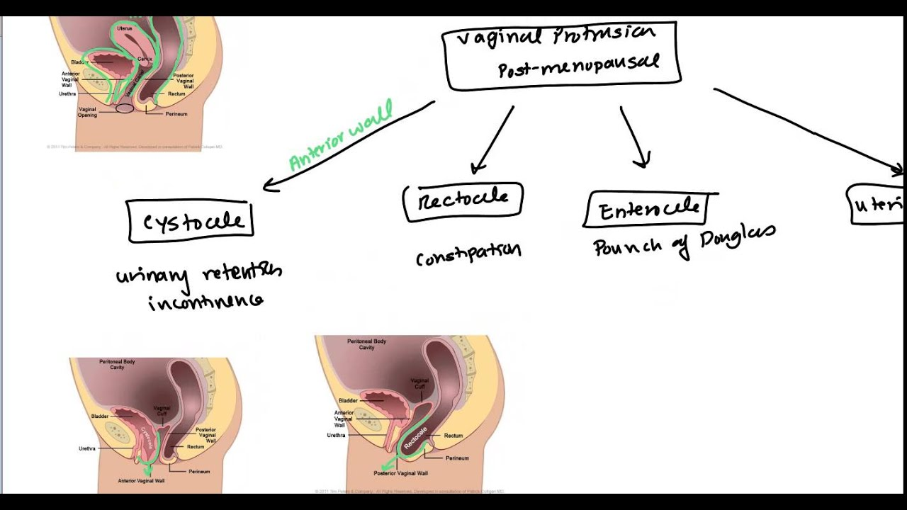 hight resolution of uterine prolapse and vaginal prolapse for usmle
