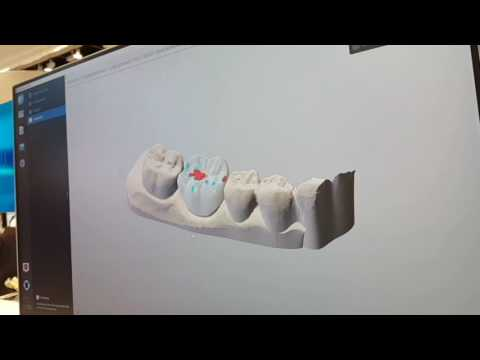 DWOS Chairside CAD