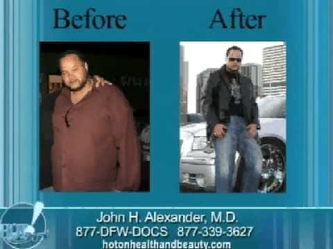 Gastric Sleeve Weight Loss Surgery – Dr. John Alexander – Dallas, Texas