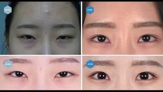 비절개눈매교정 재수술, 복합 앞트임재수술, 뒤트임, 눈…