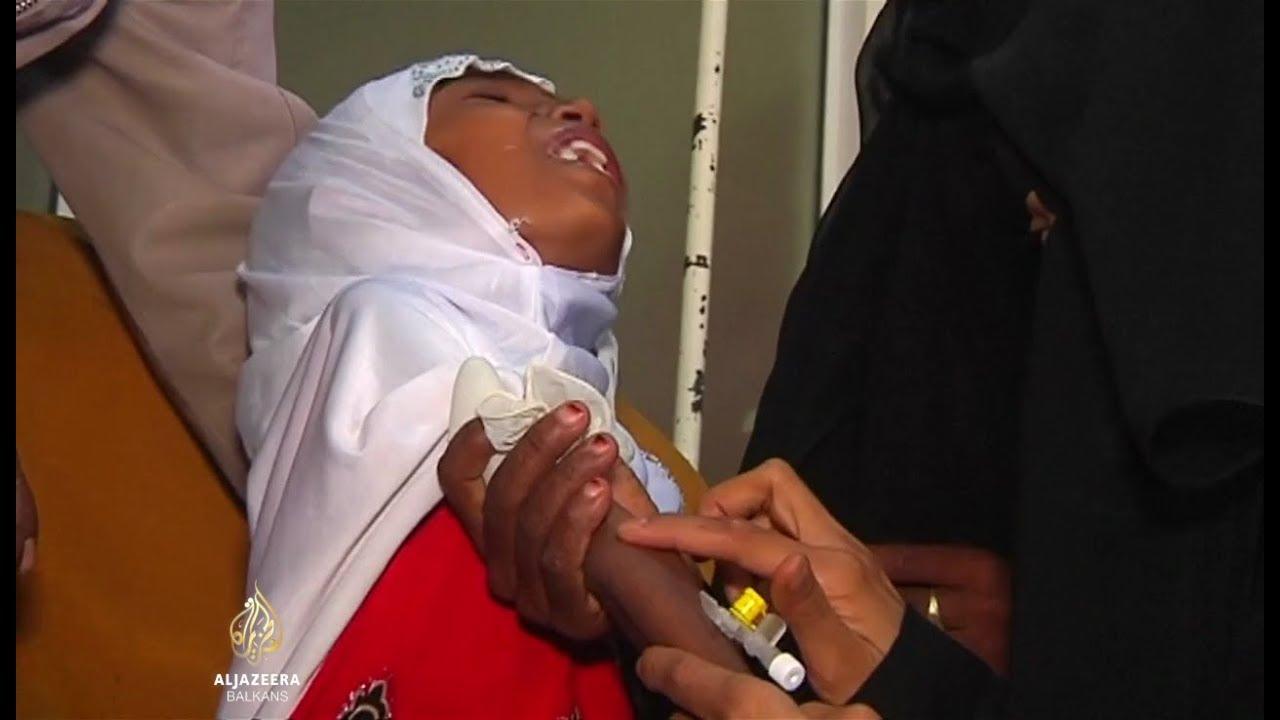Rezultat slika za jemen: djevojčica afaf ima 10 godina i svega 9 kilograma