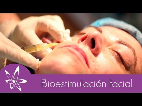 Tratamiento de Bioestimulación Facial con Factores de Crecimiento | Pixel Medical Care