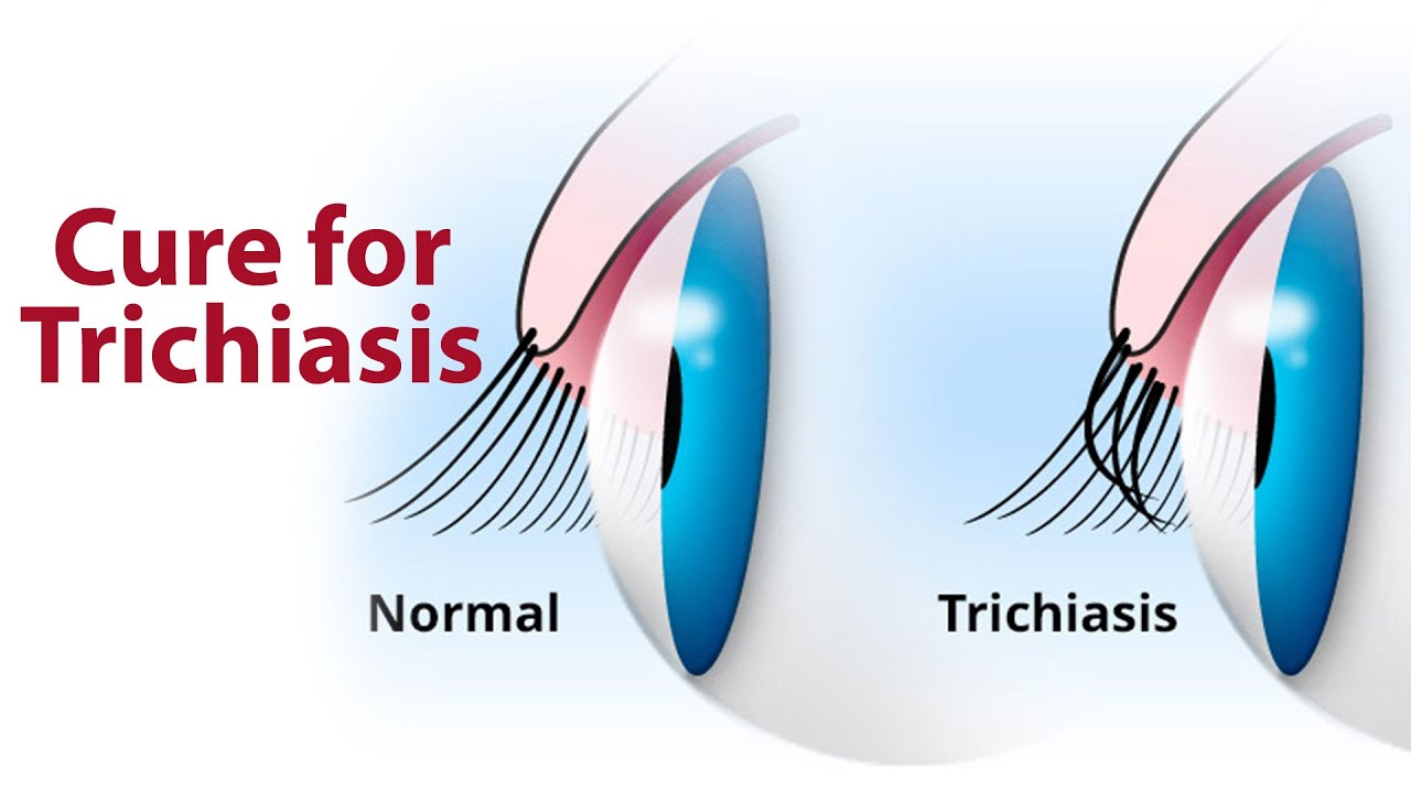 Cure For Trichiasis Zyropathy Care World Tv Youtube