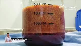 Biopolímeros extraídos gran cantidad en gluteos / silicona liquida