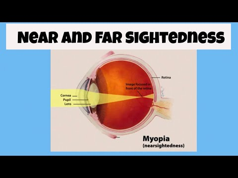 What is near and far sighted?