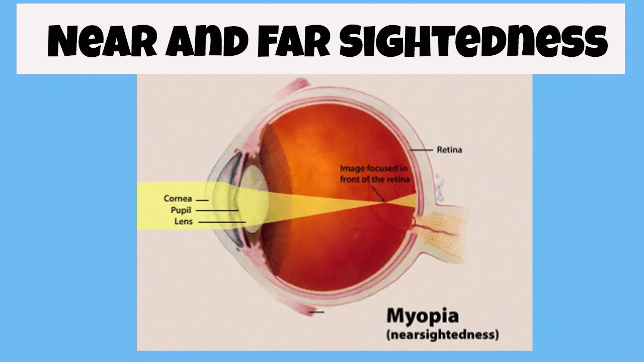 c8ea798a0d24 What is near and far sighted  - YouTube