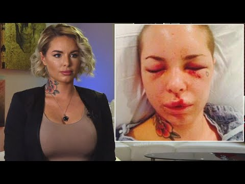 War Machine's Ex, Christy Mack, Opens up About Being Beaten by Former MMA Star