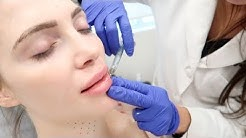 LIP INJECTIONS AND MORE AT SOUTH FLORIDA MED SPA