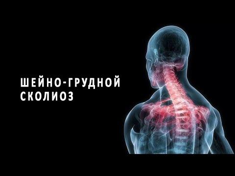Признаки и лечение шейно-грудного сколиоза