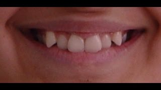 Orthodontic Treatment of Bilateral Displaced Upper Canines  - Leen 15yrs