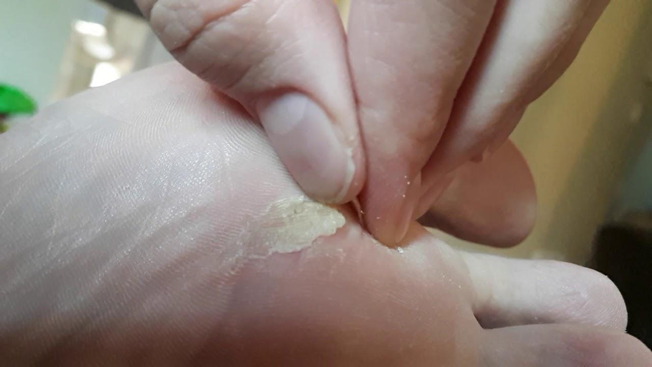Wart on head skin