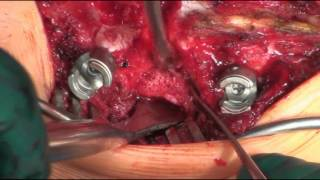Transpedicular hemivertebra resection and fusion for congenital scoliosis
