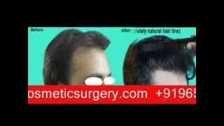 Loss Hair Grow Natural by Hair Transplant Delhi India Thumbnail