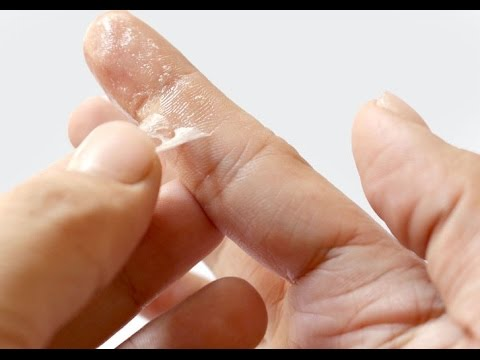 Easy way to Get rid of super glue | Remove super glue