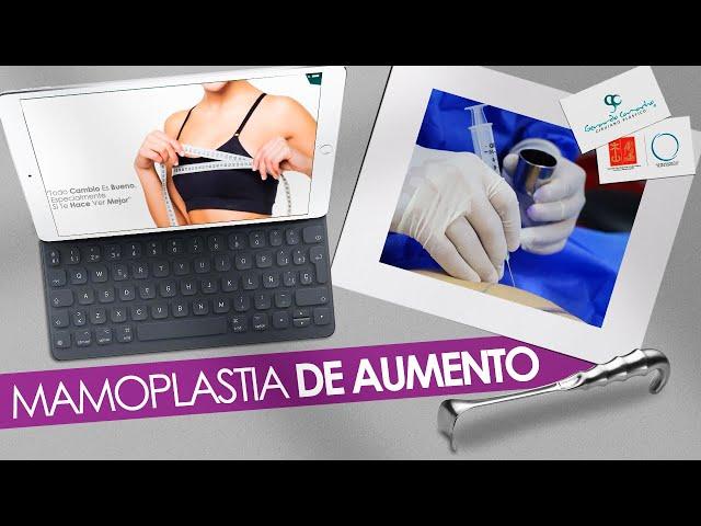 Mamoplastia de Aumento o Aumento de Senos  Casos  Dr. Gerardo Camacho   Bogota - Colombia
