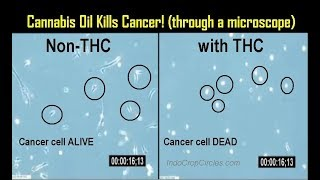 [See This] Proof: Cannabis Oil Kills Cancer!! (through a microscope)