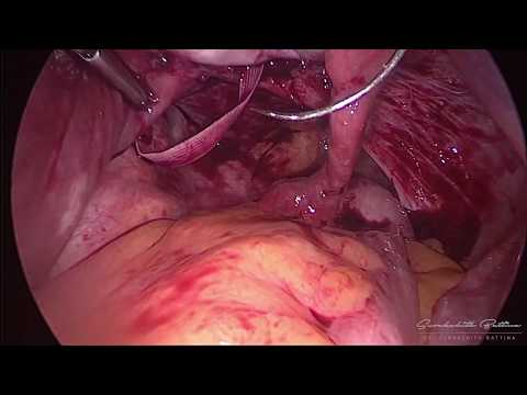 laparoscopic-cerclage-during-14-weeks-gestation