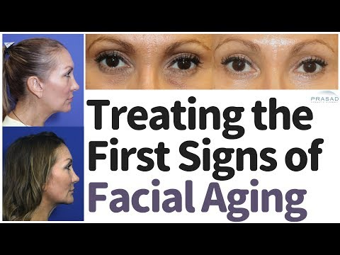 How the First Signs of Facial Aging, Especially Volume Loss, can be Treated without Surgery